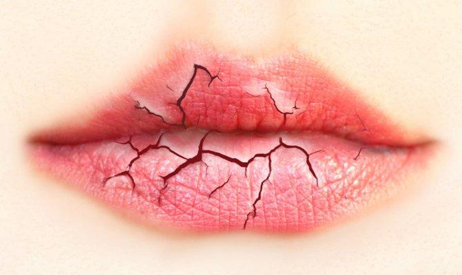 Потрескались губы