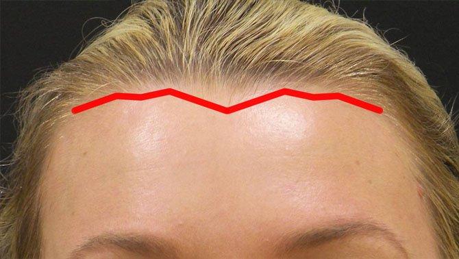 Линия волос